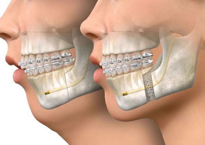 How Does Corrective Jaw Surgery Work